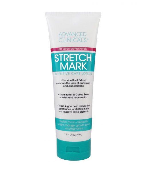 advance clinicals stretch mark